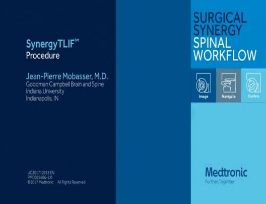 Navigated TLIF (SynergyTLIF™ ) Procedure featuring CD Horizon™ Solera™ Voyager & Elevate™ Spinal System Expandable Interbody Dev